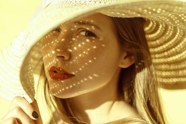 Έγκαυμα από τον Ήλιο; 10 βήματα για να το αντιμετωπίσεις